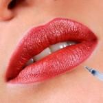 Hyaluronic Acid Dermal Filler For Fuller Lips